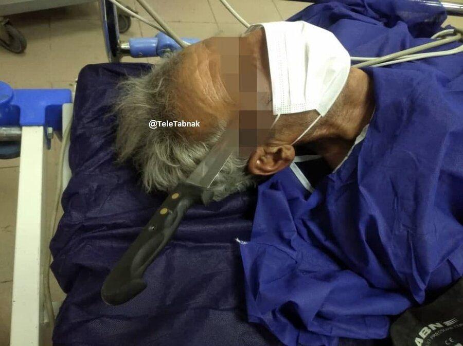 تصاویر   خارج کردن چاقوی آشپزخانه از جمجمه یک مرد در بیمارستان لقمان