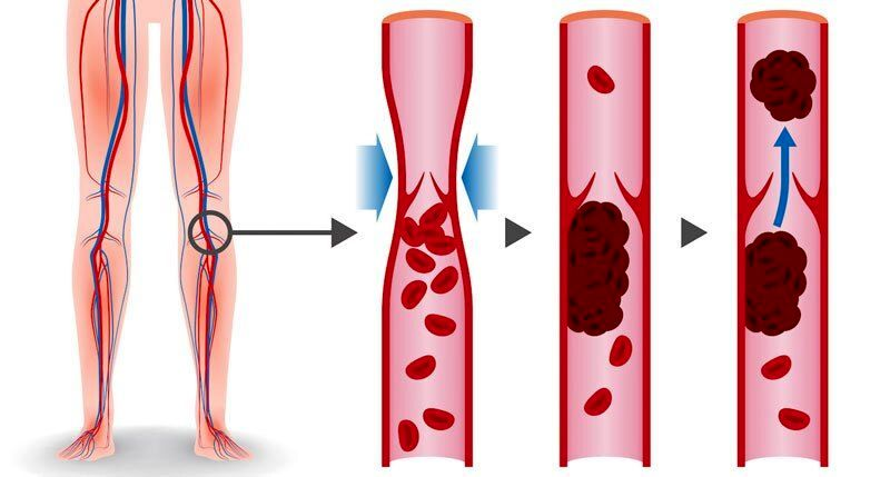 ترومبوز یا لختگی خون، از علل بروز تا درمان