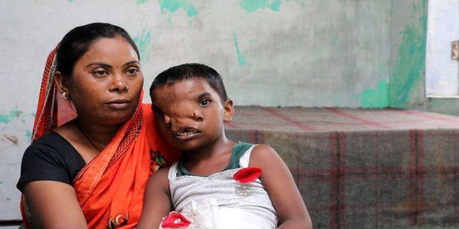 دختربچهای که بخاطر داشتن دو بینی چهره ای مشهور شد+ عکس