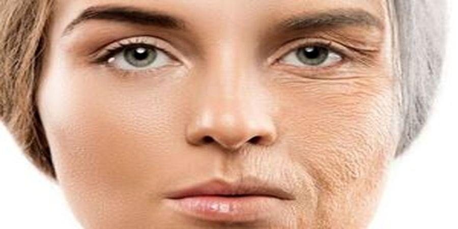 ۱۰ ماده غذایی مضر که پوست صورت را نابود میکنند