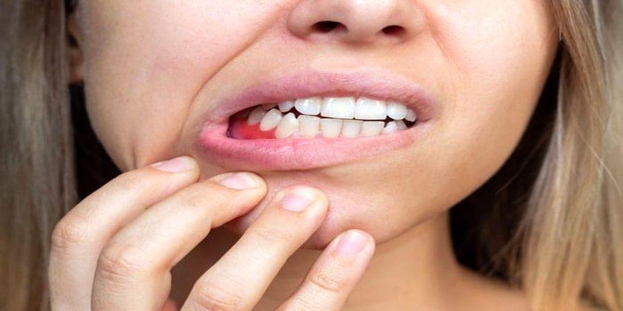 نشانه های این بیماری در دندان ظاهر می شود