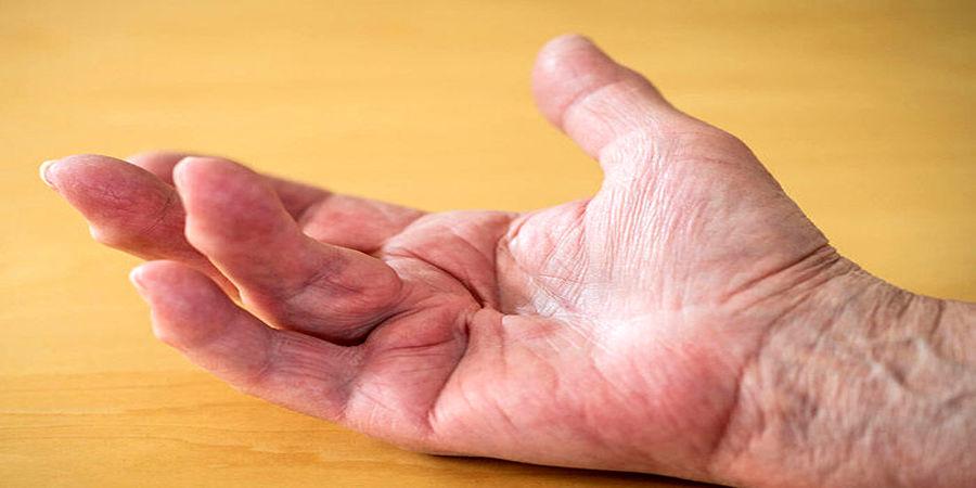 با این بیماری پوستی ناشناخته و بدون درد آشنا شوید