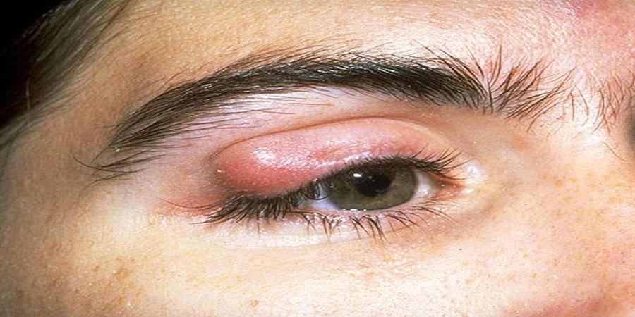 نشانه های ترسناکی که خبر از بیماری چشم میدهند