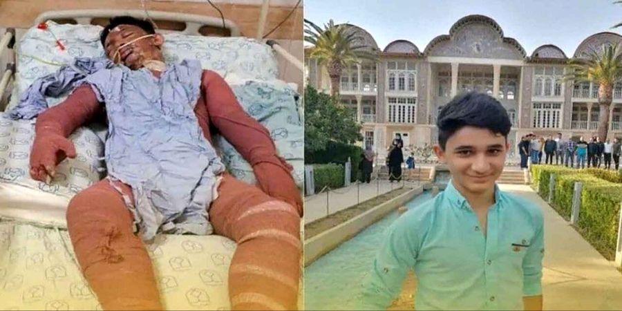 علی لندی، نوجوان شجاع  ایذه ای درگذشت/ او جان دو زن را در آتش سوزی نجات داد