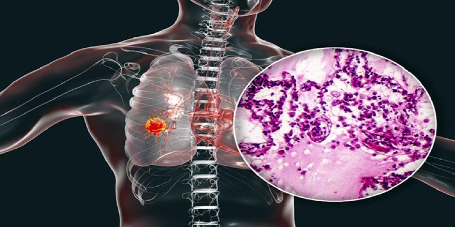 این نشانه های ساده را جدی بگیرید شاید از خستگی نباشد و سرطان مرگبار باشد