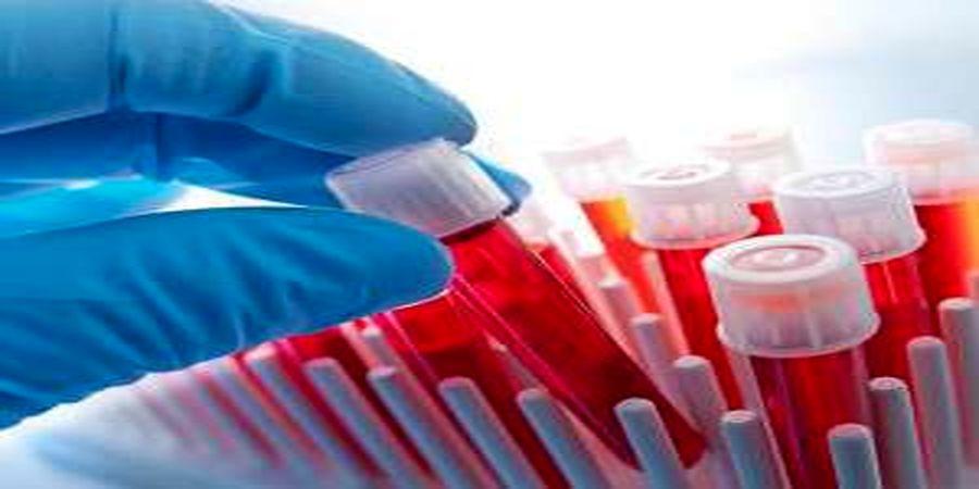 آموزش خواندن برگه آزمایش خون به زبان ساده + جدول