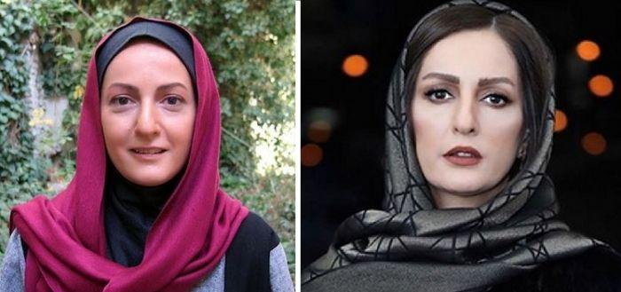چهره قبل و بعد بازیگران